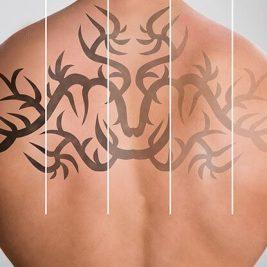 Как удалить тату - как вывести тату - кавер на тату - вывести тату лазером - как избавиться от тату