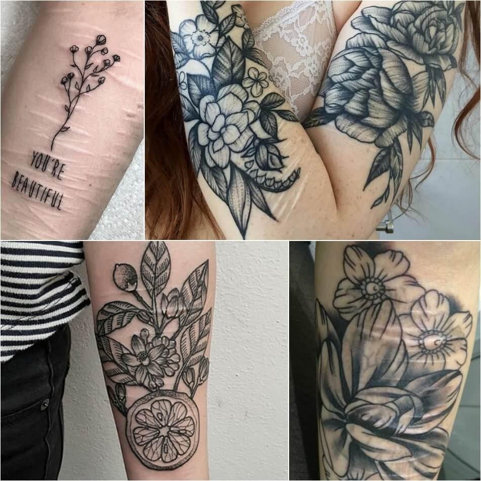 Тату на шрамах - Татуировки на шрамах - Тату на рубцах - Кавер на шраме